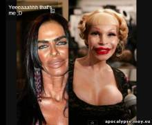 The worst plastic surgery of all time